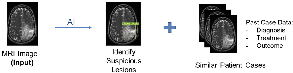MRI tumor identification and reverse image look-up
