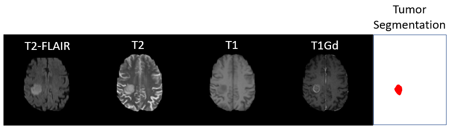 Figure 2: Example MRI slice of patient with a brain tumor from the BraTS 2020 dataset. Showing all four modalities as well as the human expert produced tumor segmentation.