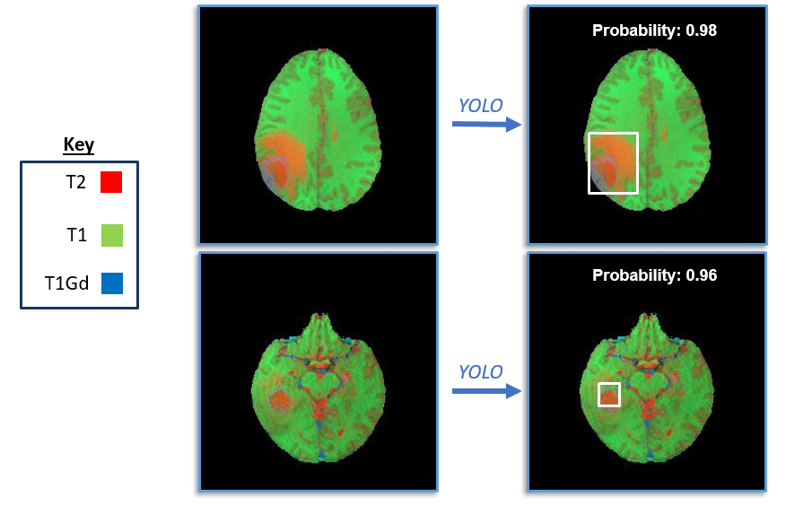 Figure 4: YOLO identification of tumors from multi-modal MRI images. Key describes the color channel used to represent the intensity of the image from each MRI modality.