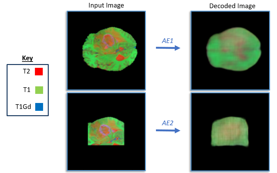Figure 6: Multi-modal MRI image and generated output image from AE1 and AE2. Only 3 of the 4 modalities are shown to allow it to be visualized as a red, green, blue image. It can be seen the autoencoders are able to maintain some relevant image features even after 12x compression, suggesting important imaging features have been extracted which can be used to find images with similar features.