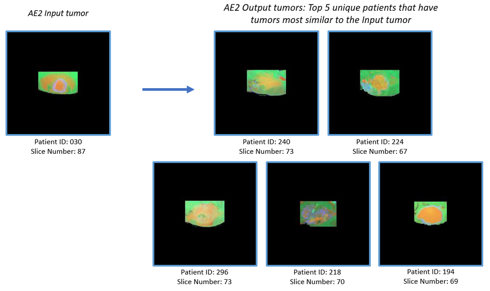 Figure 7: (b) Example Inputs and outputs to AE2. The output consists of tumor slices (cropped from the MRI slices) of 5 unique patients having tumors most similar to the input tumor.
